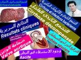Cirrhose et Endocardite , Foie et Cœur