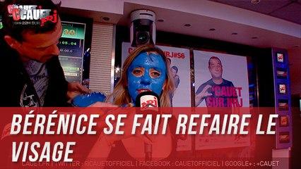Bérénice se fait refaire le visage - C'Cauet sur NRJ