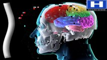 How brain injury damages brain - Brain injury causes and complications