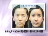 Korean Cosmetic Surgery