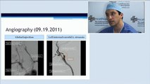 15 combined disease coronary artery stenting and left carotid artery stenting incathlab.com