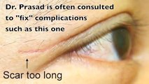 Asian Blepharoplasty Eyelid Surgery (double eyelid surgery) performed by eyelid surgery sp