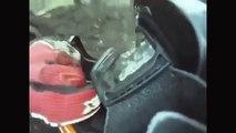 Dirt Bike Crash runs into tree, bone sticking out! YouTube