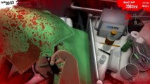 Surgeon Simulator Heart Transplant 27 Seconds