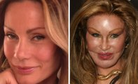 Worst Cases of Celebrity Plastic Surgery Gone Wrong -- Before-And-After Plastic Surgery Disasters