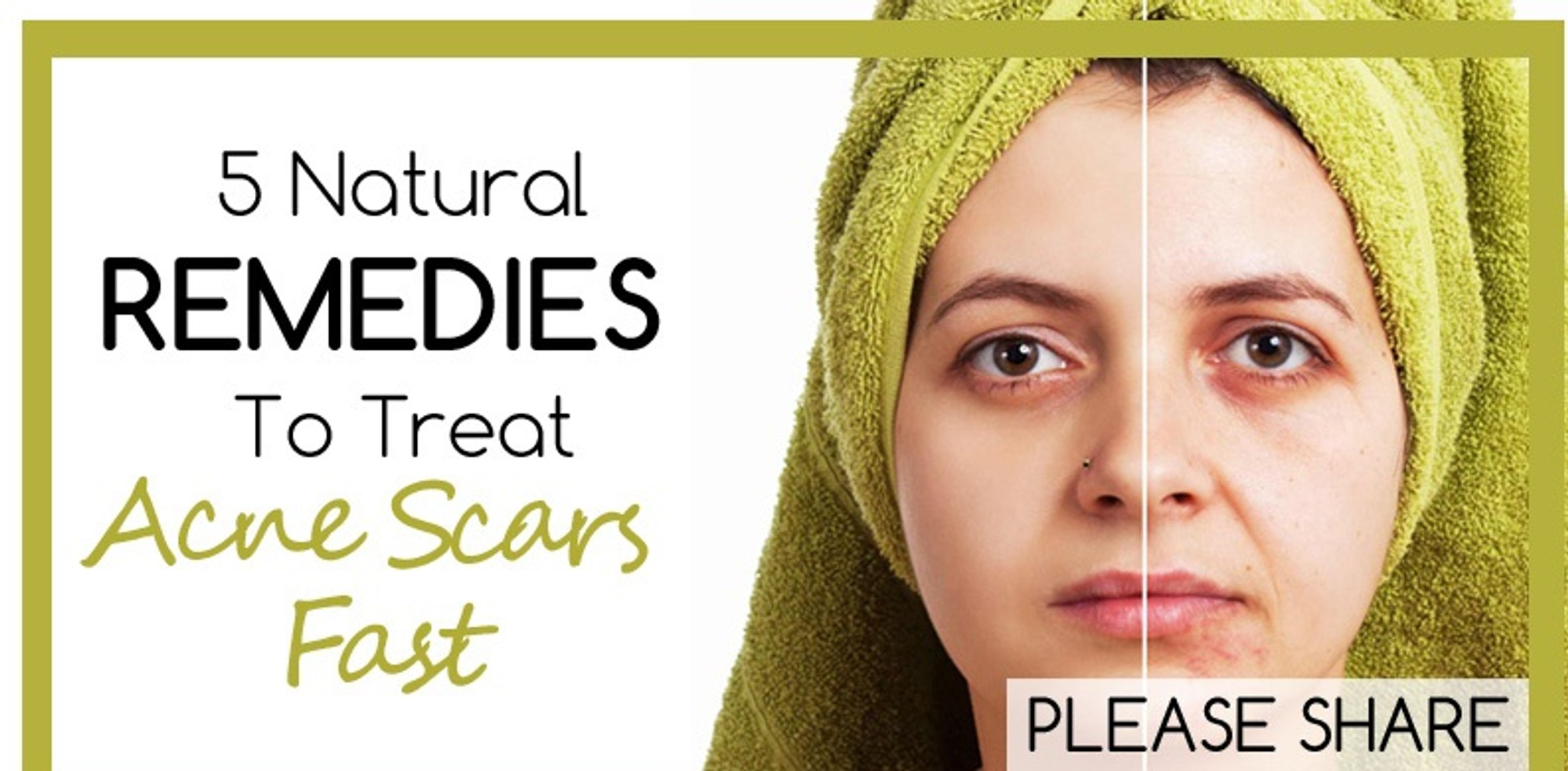 How To Remove Pimple Scars Get Rid Of Acne Scars How To Use
