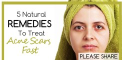 how to remove pimple scars  get rid of acne scars   How To Use Lemon For Scarring & Dark Spots   Naturally Healthy Skins