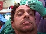 Plastic surgery by Dr Jeffrey Epstein- patient's hair journey - part 23