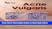 Read Acne Vulgaris  Ebook Free