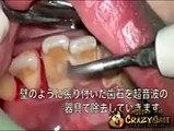 Quand vous restez un moment sans vous brosser les dents voici les résultats