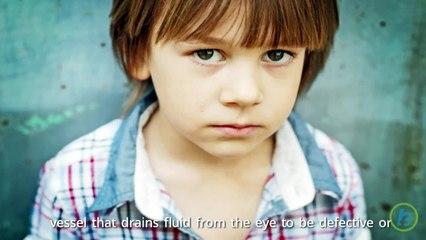 Child Glaucoma Gene Discovered