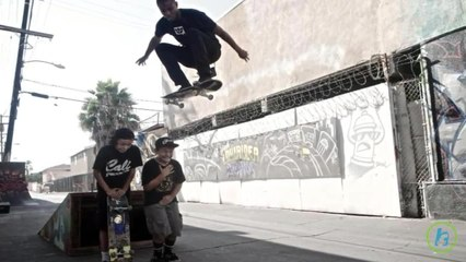Primary Dangers of Skateboarding Include Fractures, Head Trauma, and Dislocation