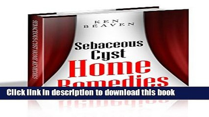 Sebaceous Cyst Resource | Learn About, Share and Discuss Sebaceous