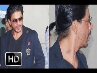 Spotted: SRK with love bite on his neck
