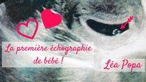 Grossesse ♡ Première échographie de bébé !