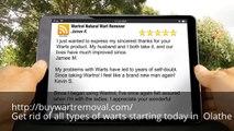 Where Can I Buy Wart Remover in Olathe KS