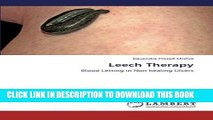 [Read PDF] Leech Therapy: Blood Letting in Non healing Ulcers Ebook Free