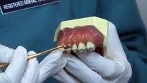 Preventing Periodontal Disease - Westfield Smiles - Dentist in Westfield, NJ
