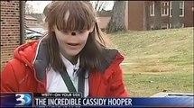 Cette fille est née sans nez et sans yeux