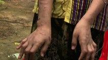 Birmanie: l'enfer des enfants esclaves, battues et brûlées