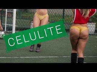 CELULITE - Homem se incomoda com a celulite no corpo das mulheres?