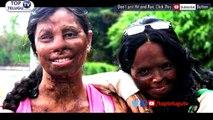 Acid-Attack Survivor Reshma Qureshi RAMP WALK | New York Fashion Week | #TopTeluguTv