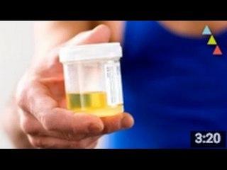 10 coisas que não sabias sobre a urina
