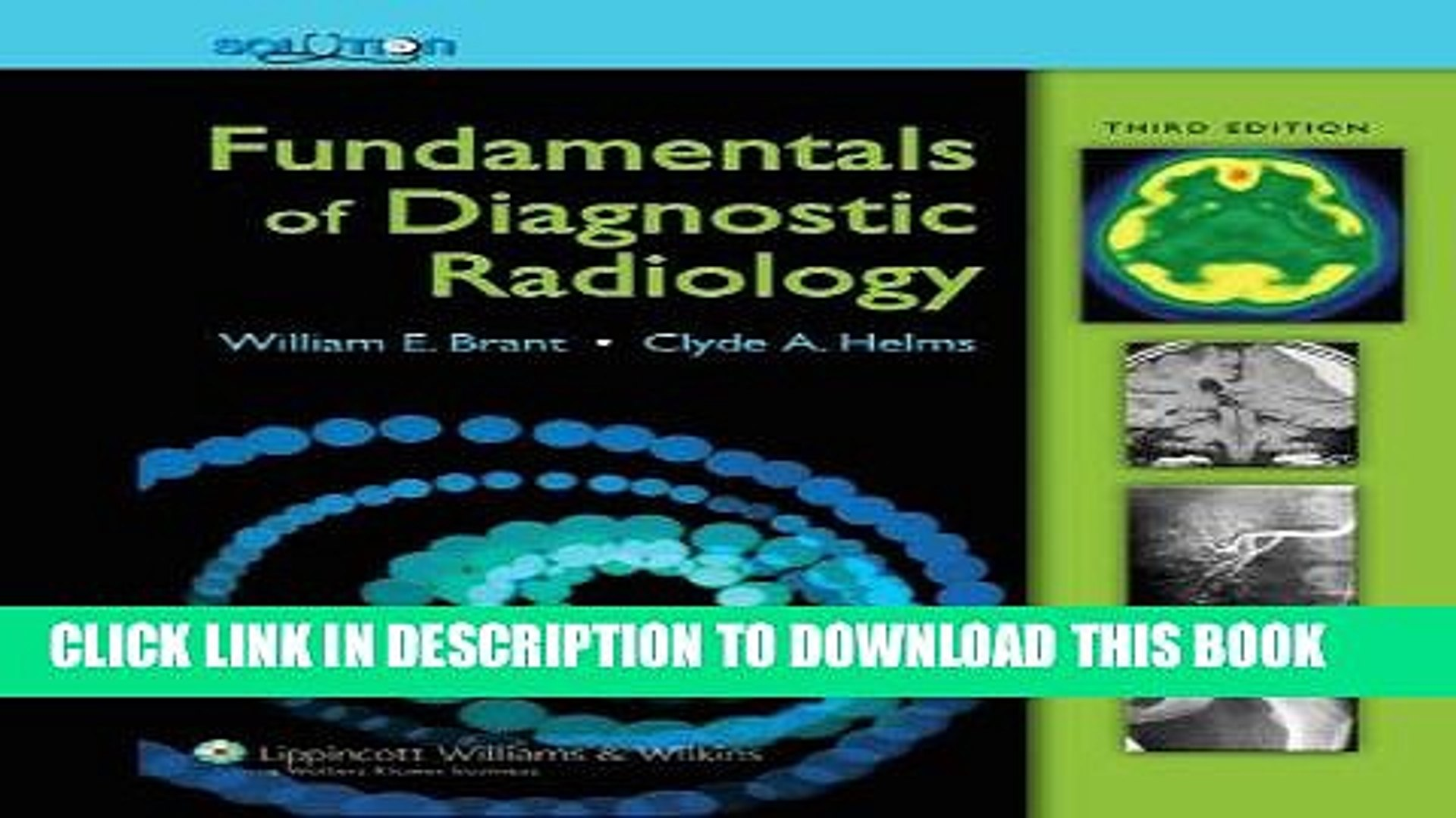Read Now The Brant and Helms Solution: Fundamentals of Diagnostic Radiology, Third Edition, Plus