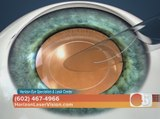Horizon Eye Specialists & Lasik Center has new vision options for cataract patients