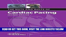 [FREE] EBOOK The Nuts and Bolts of Cardiac Pacing ONLINE COLLECTION
