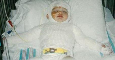 Beba koja je preživjela nemoguće