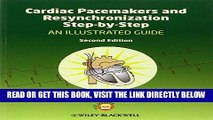 [READ] EBOOK Cardiac Pacemakers and Resynchronization Step by Step: An Illustrated Guide ONLINE