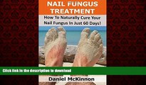 Buy book  Nail Fungus Treatment: How To Naturally Cure Your Nail Fungus In Just 60 Days online