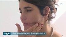 Cette survivante des attentats du Bataclan touchée par deux balles au visage raconte sa lente reconstruction