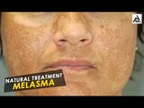 Natural Treatment For Melasma | Best Beauty Tips