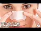 How To Clear Blackheads | Home Remedies | Best Health and Beauty Tips | Lifestyle