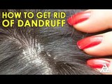 How To Get Rid Of Dandruff | Home Remedies | Best Health and Beauty Tips | Lifestyle