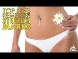 Top 5 Home Remedies for Stretch Marks | Best Health and Beauty Tips | Lifestyle