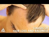 Causes Of Hair Loss And Baldness   Best Health and Beauty Tips   Lifestyle
