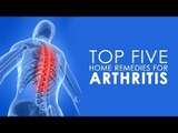 How To Cure Arthritis | Top 5 Home Remedies For Arthritis | Simple Health Tips