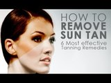 How To Remove Sun Tan | Remedies For Skin Care | Simple Health Home Remedies Tips