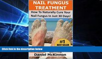 Read Nail Fungus Treatment: How To Naturally Cure Your Nail Fungus In Just 30 Days (2nd Edition)
