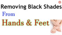 Removing Black Shades on Hands and Feet | Dark Spots on Hands & Feet | Get Flawless Glowing Skin |