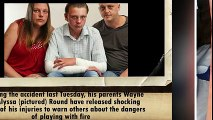 Schoolboy 14 is turned into a human fireball after aerosol can explodes during prank