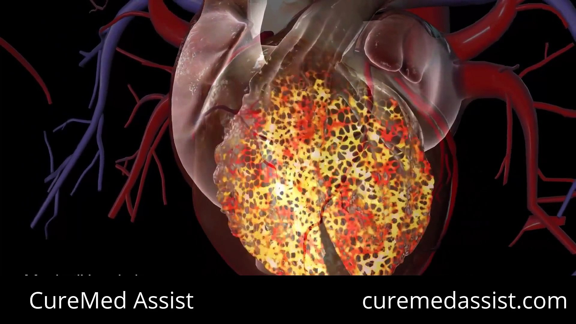 Understanding the Pacemaker And Heart's Electrical System – CureMed Assist – Medical Tourism Co