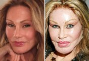 10 Worst Plastic Surgery Fails