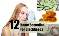 Home Remedies for Blackheads - How to made Home Remedies for Blackheads - Health Care Tips - Health Tips - Health and Fitness Tips - Health Tips For Men - Health Tips for women - Natural Health Tips