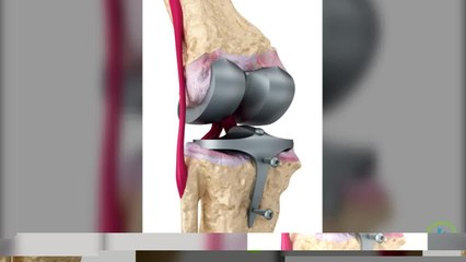 What is an Anterior Cruciate Ligament Surgery?
