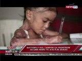 SONA: Butterfly kid, tampok sa Frontrow sa GMA News TV, 9:45 PM bukas
