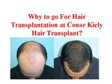 About Dr Conor Kiely Reviews | Conor kiely Hairtransplant
